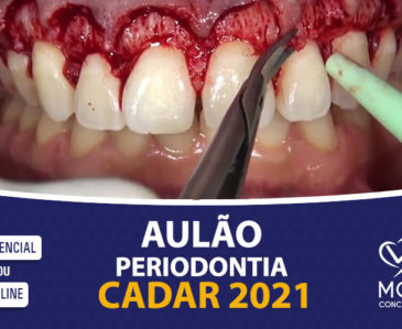 Aulão Periodontia – CADAR 2021